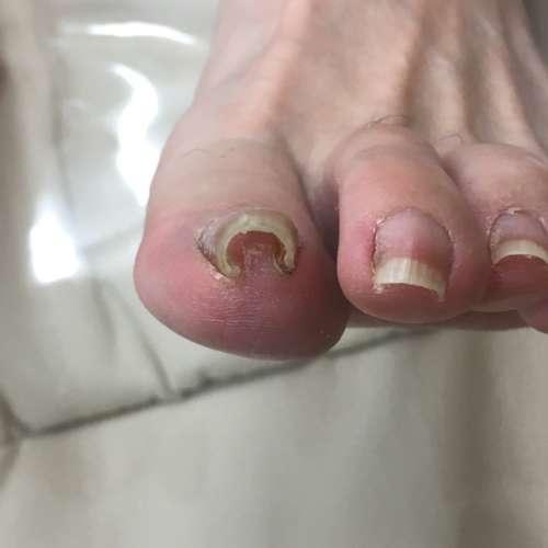 爪 病院 巻き